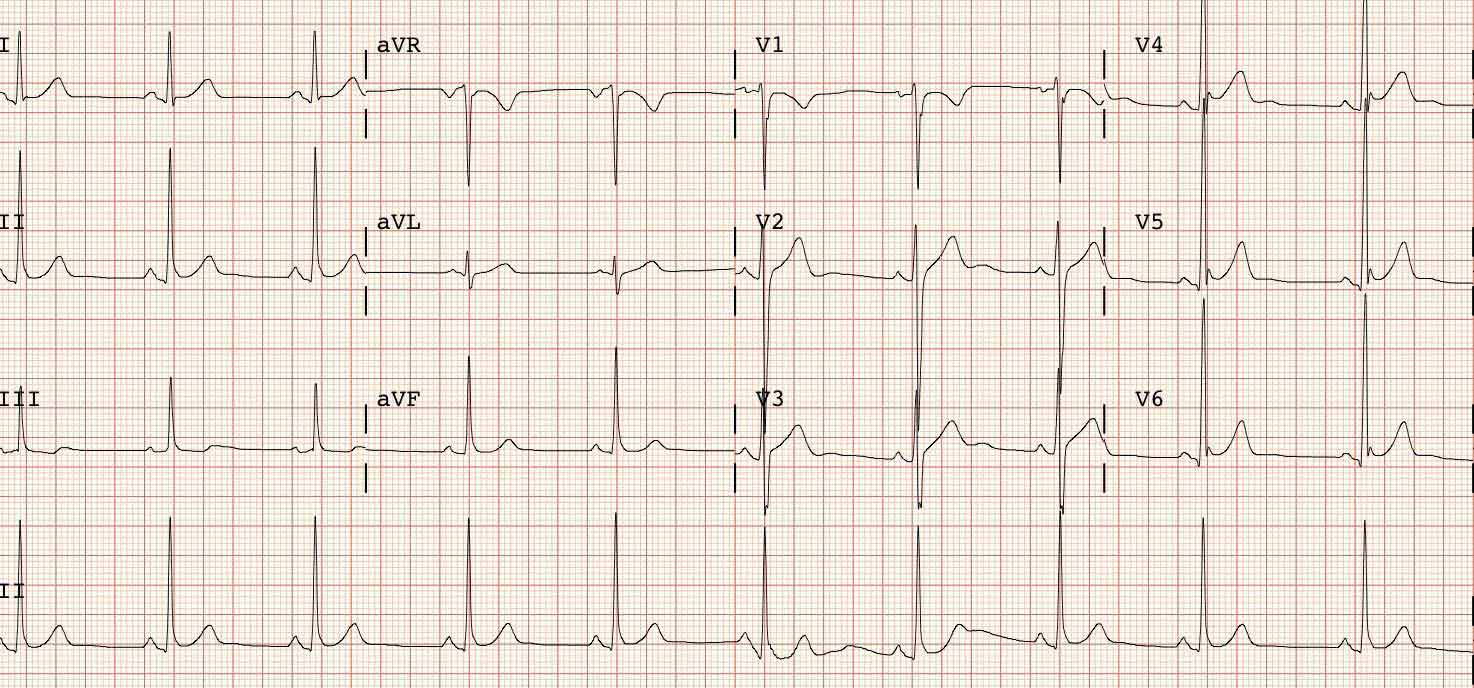 Electrocardiogramas a Domicilio ECG en capital federal