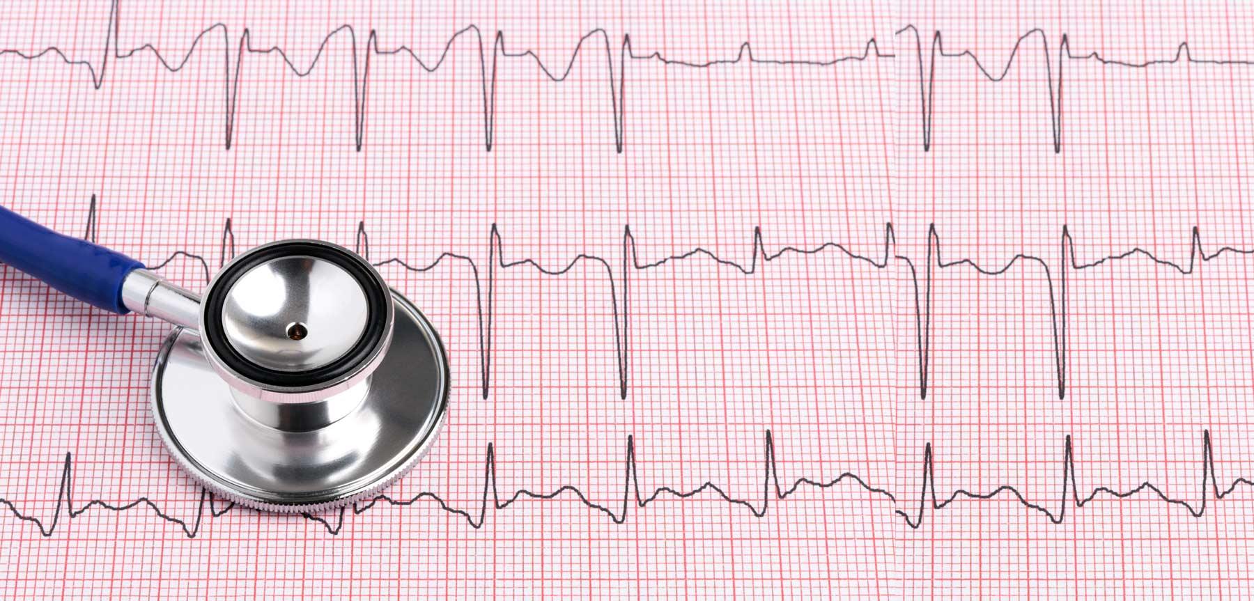 Electrocardiogramas con descuento a PAMI
