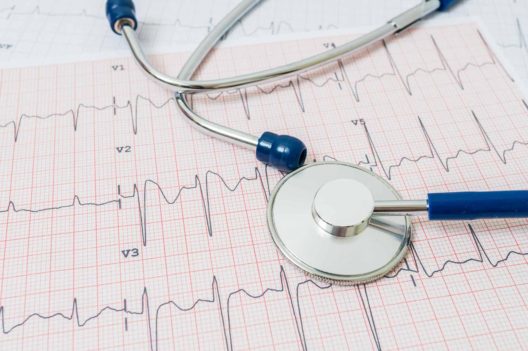 Servicio Electrocardiogramas ECG a Domicilio