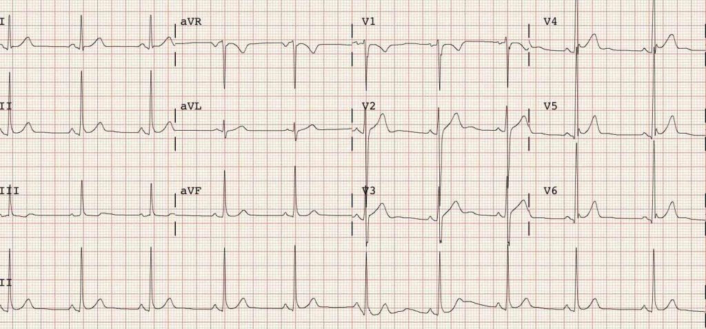 Electrocardiograma (ECG) a domicilio en Capital Federal zona Sur Norte y oeste