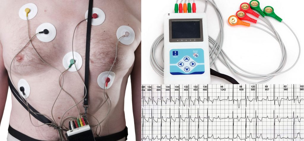 Holter Cardíaco Arritmias a Domicilio en Capital Federal zona Norte, Sur Oeste